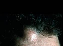 липома на голове