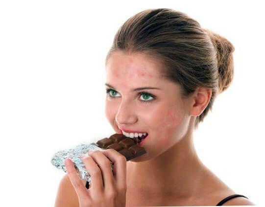 Прыщи от сладкого и шоколада