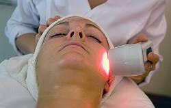 Лечение акне лазером