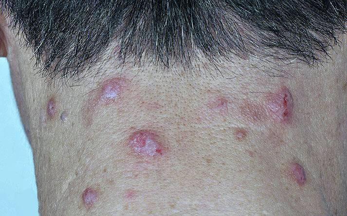 кожные заболевания. фото